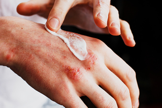 Understanding and Treating Eczema
